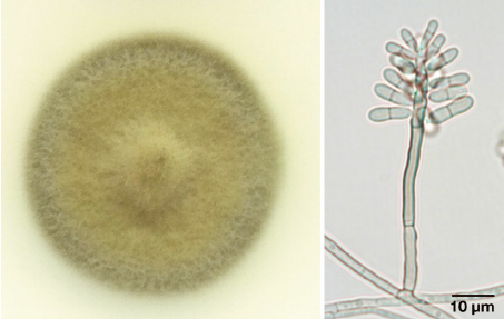 Veronaea-botryosa-isolated-from-an-intratracheal-granuloma-from-a-green-turtle