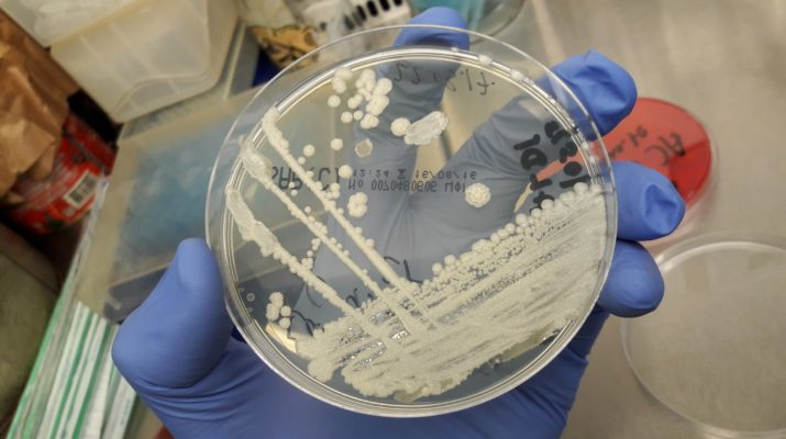 Candida_parapsilosis_yeast_fungus_colony_clinical_culture